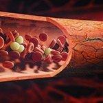 thumb-Choroby naczyń